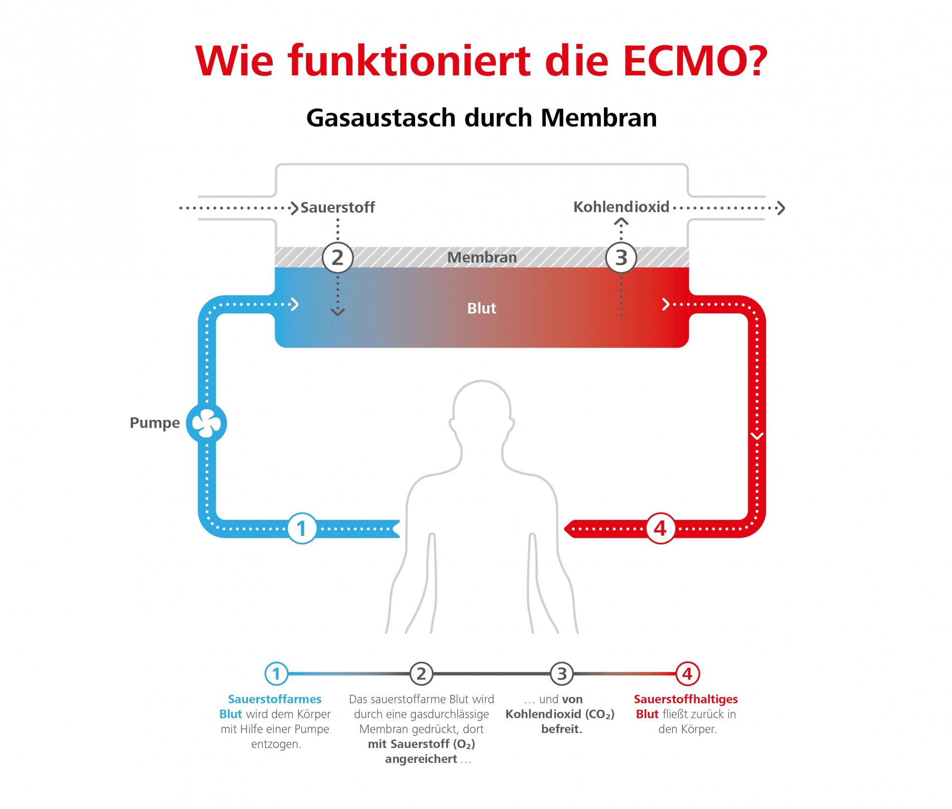 Infografik zur Funktionsweise der ECMO